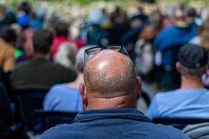 Pourquoi les hommes sont-ils touchés par la calvitie